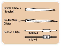 EC Dilator